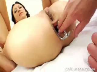 الشرجي prolapsing في ال gynecologist