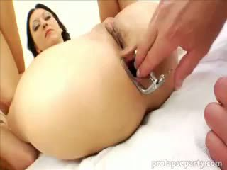 Anala prolapsing vid den gynecologist